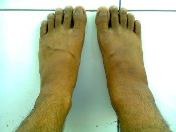 kaki bengkak